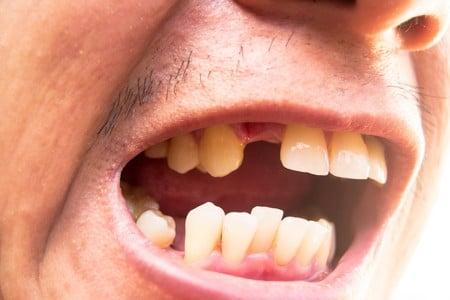 Cauzele pierderii dintilor