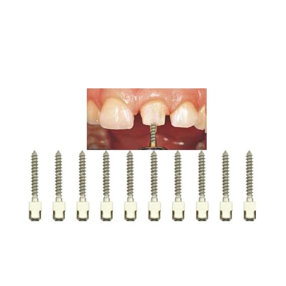 tipuri pivot dentar