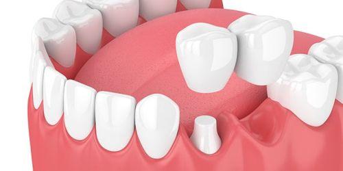 punte dentara cantilever