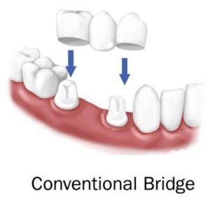 tip punte dentara traditionala sau clasica