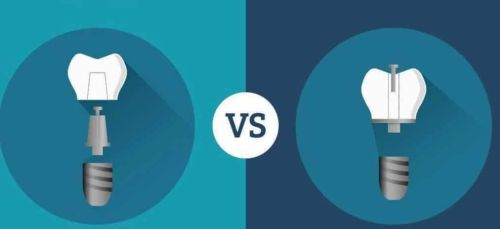 coroana cimentata versus insurubata pe implant
