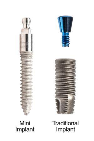 miniimplantur dentar versus implant traditional