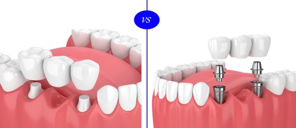 punte dentara clasica versus coroana dentara pe implant