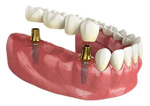 punte dentara pe implanturi