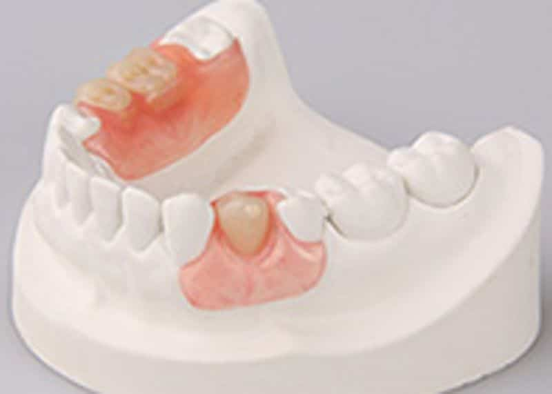 proteza dentara kemeny