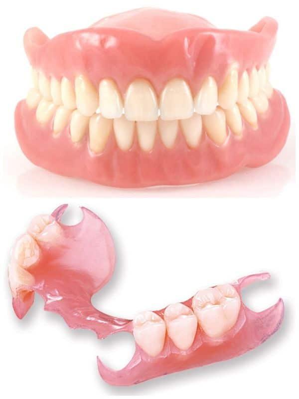 proteza elastica versus clasica acrilica