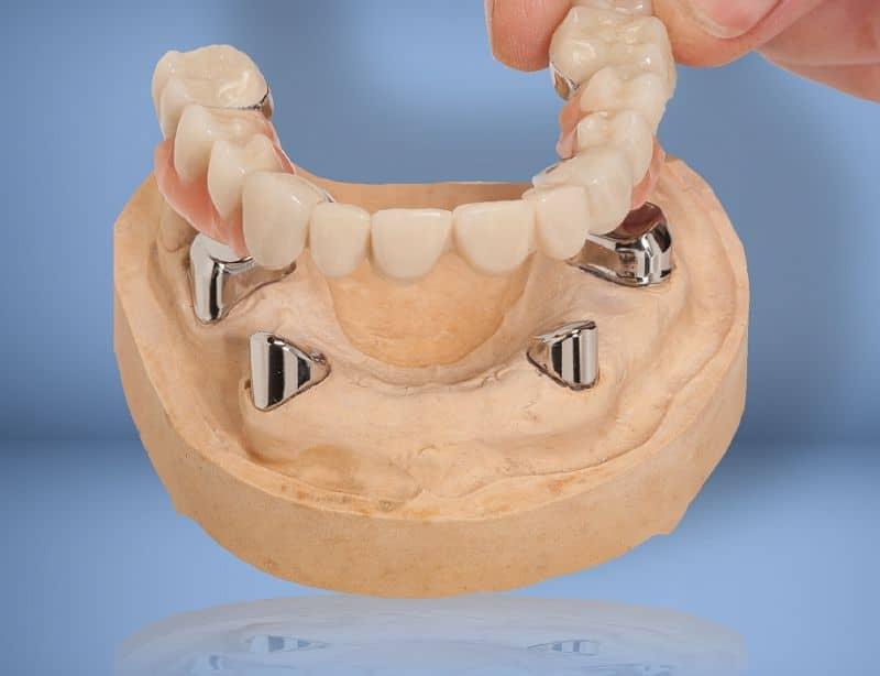 proteza dentara telescopata