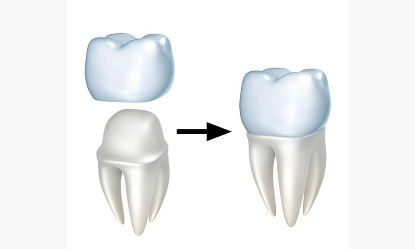 coroana dentara compozit pe dinte