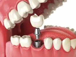 coroana dentara provizorie temporara pe implant