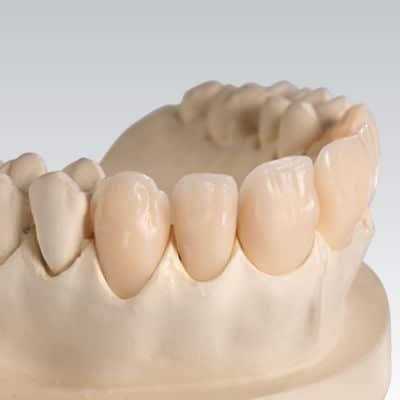 proteza dinti din acrilat