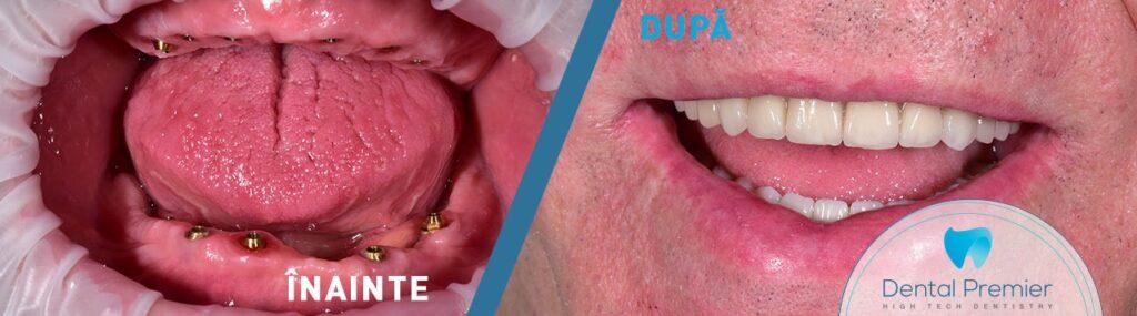 Dinti intr-o zi - implant dentar bucuresti