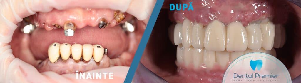pret implant dentar toata gura