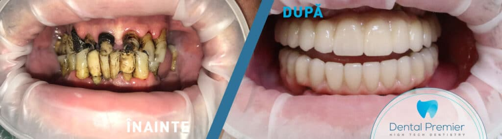 implant dentar all on 4 - proteza fixa pe implanturi