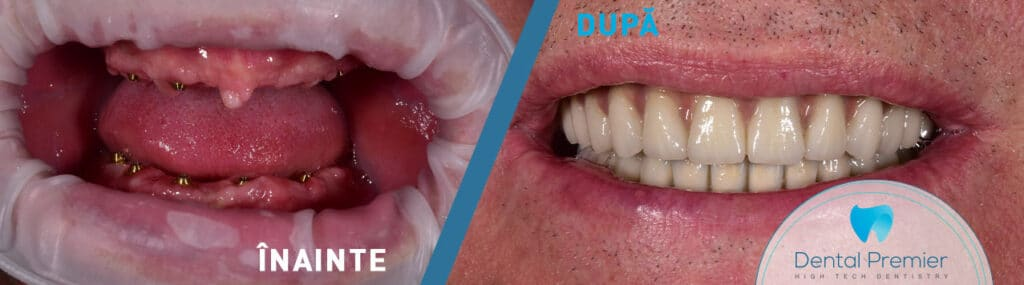 Dantura Fixa in 24 ore - Proteze dentare fixe pe 4 si 6 implanturi