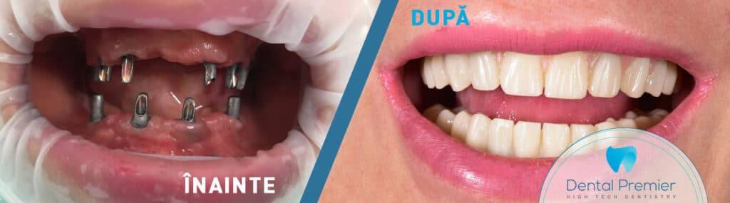 Lucrare dentara fixa pe 4 si 6 implanturi