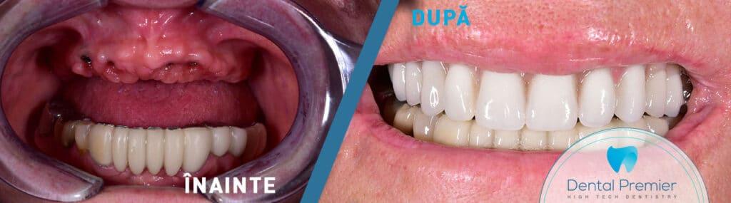 Proteza dentara fixa pe 6 implanturi