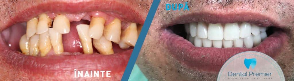 Proteza dentara fixa pe 6 si 4 implanturi