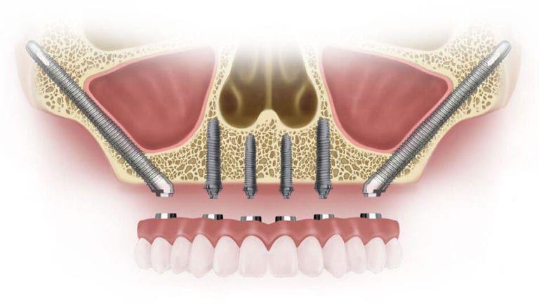 2 implanturi zigomatice