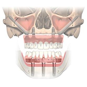 riscurile implanturilor dentare zigomatice