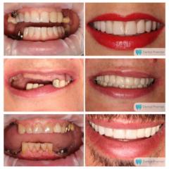Coroane dentare si fatete dentare integral ceramice