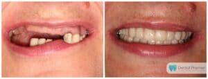 Coroane dentare integral ceramice