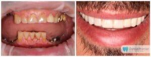 Implanturi + Coroane si fatete dentare integral ceramice
