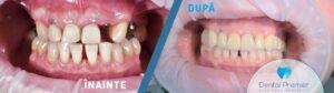 Coroane integral ceramice pe implant