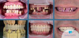 Coroane ceramice pe implant