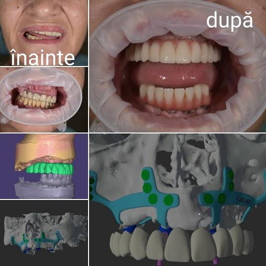 Implanturi subperiostale si dinti ficsi in 24 de ore