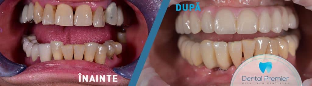 Coroane si fatete dentare integral ceramice CEREC Cad/Cam