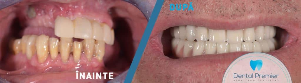Coroane si fatete dentare integral ceramice