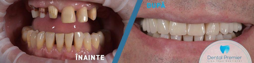 Coroane dentare si fatete dentare ceramice intr-o zi
