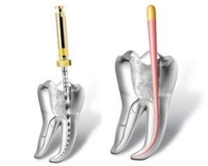 tratament-endodontic