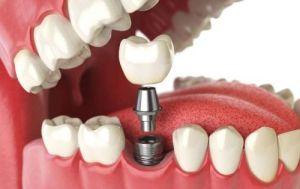 coroana pe implant dentar