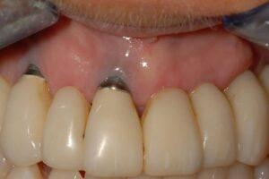 Complicatii-implant-dentar