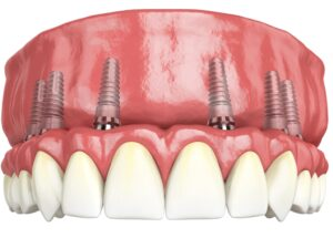 Lucrare fixa pe 6 implanturi