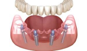 Lucrare fixa pe 4 implanturi